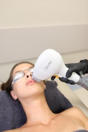 Разширени вени. Безкръвно лечение на разширени вени. Лазерна аблация.